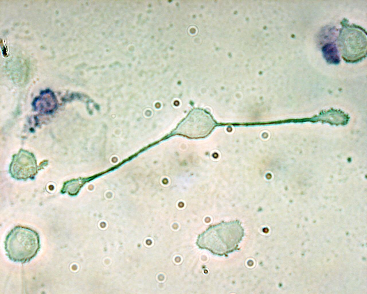 Vista microcópica de un macrófago, en este caso de un ratón
