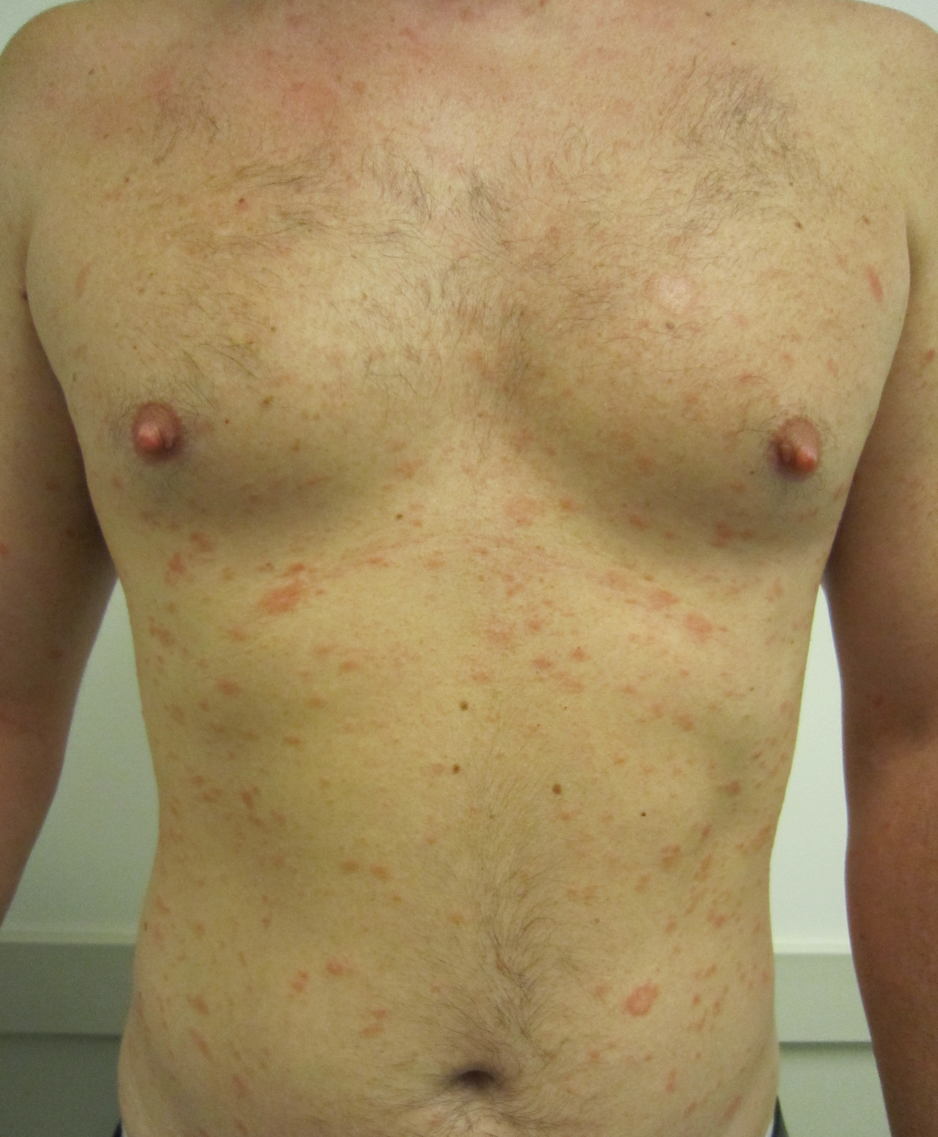 Pityriasis rosea for Allergic reaction to hot tub