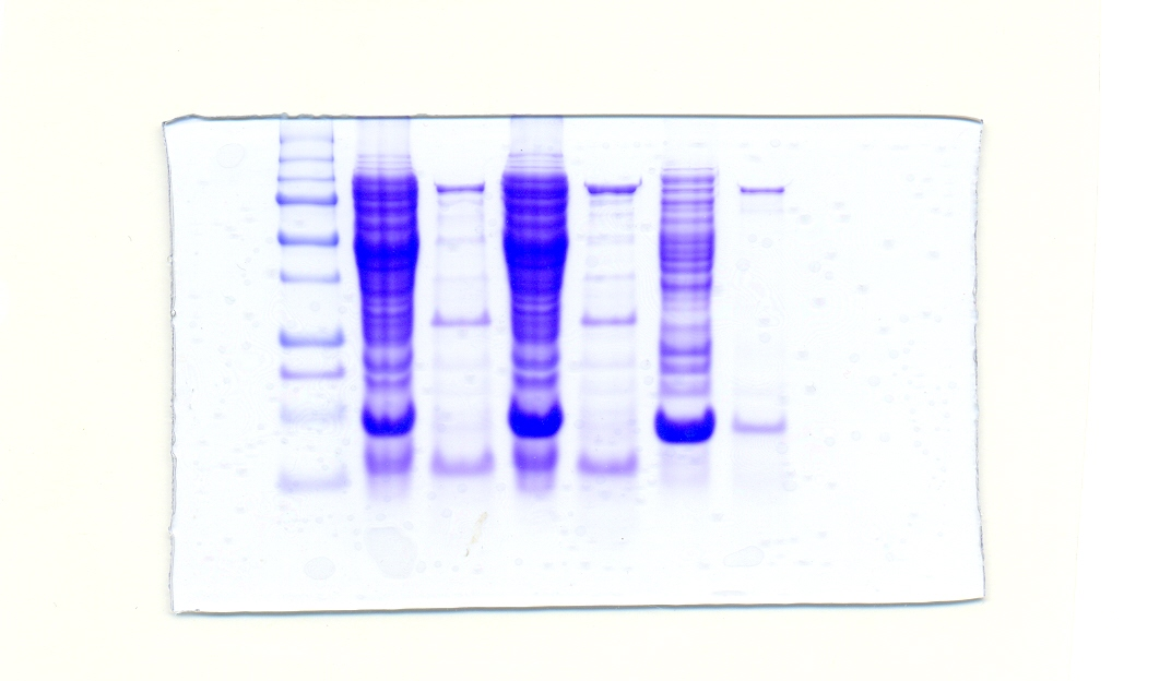 File Sds Page With Taq Dna Polymerase Jpg Wikimedia Commons