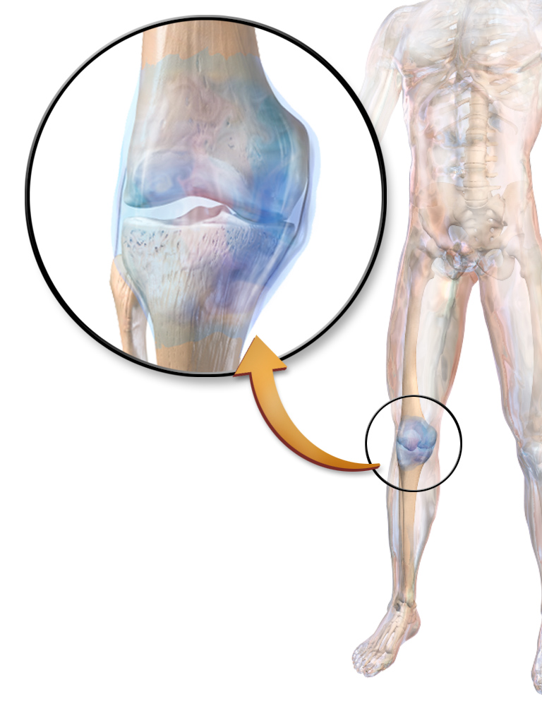 File:Synovial Joint.png - Wikimedia Commons