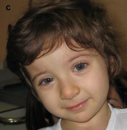 Case Report Rubinstein-Taybi Syndrome
