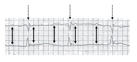 ملف:3rd degree heart block.PNG