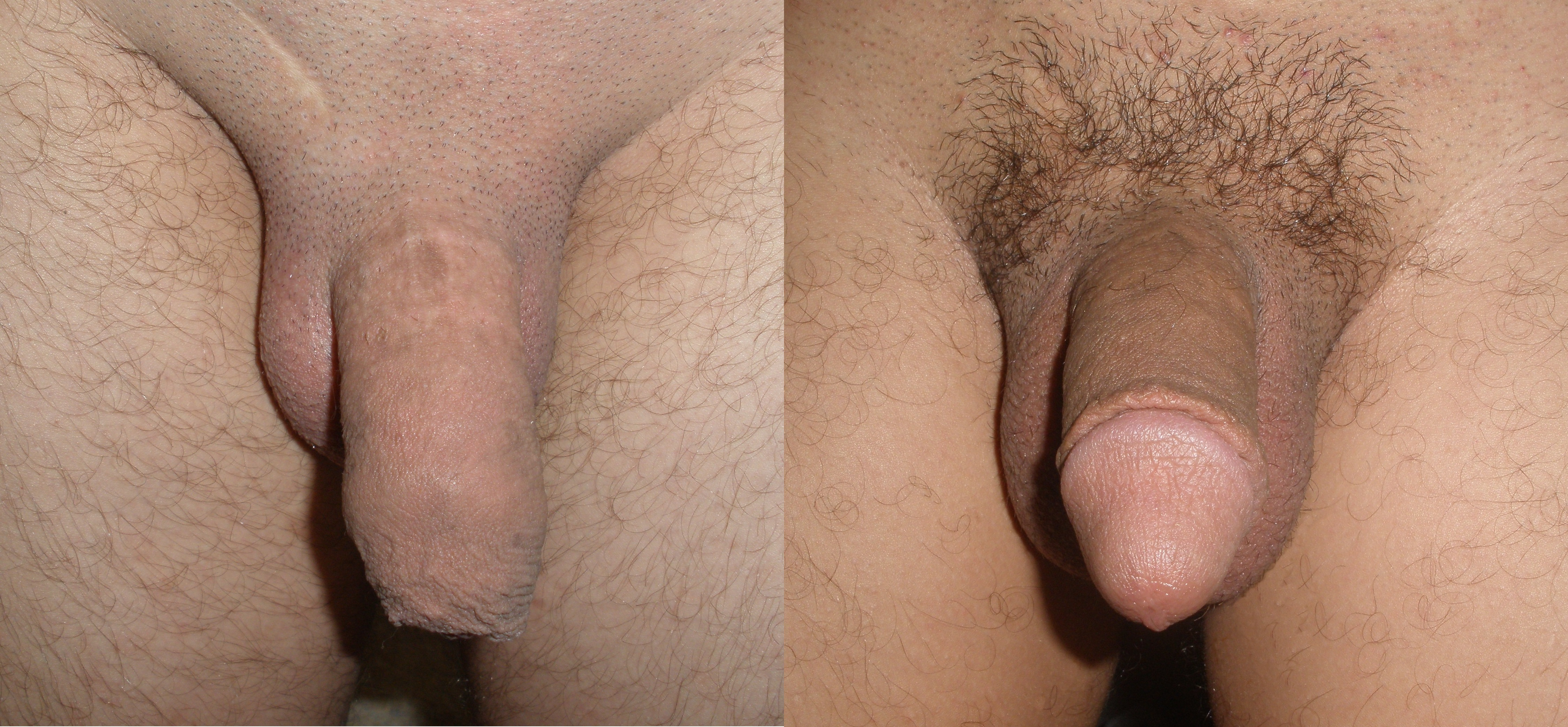 Circumcised Women Vagina Before And After-9536