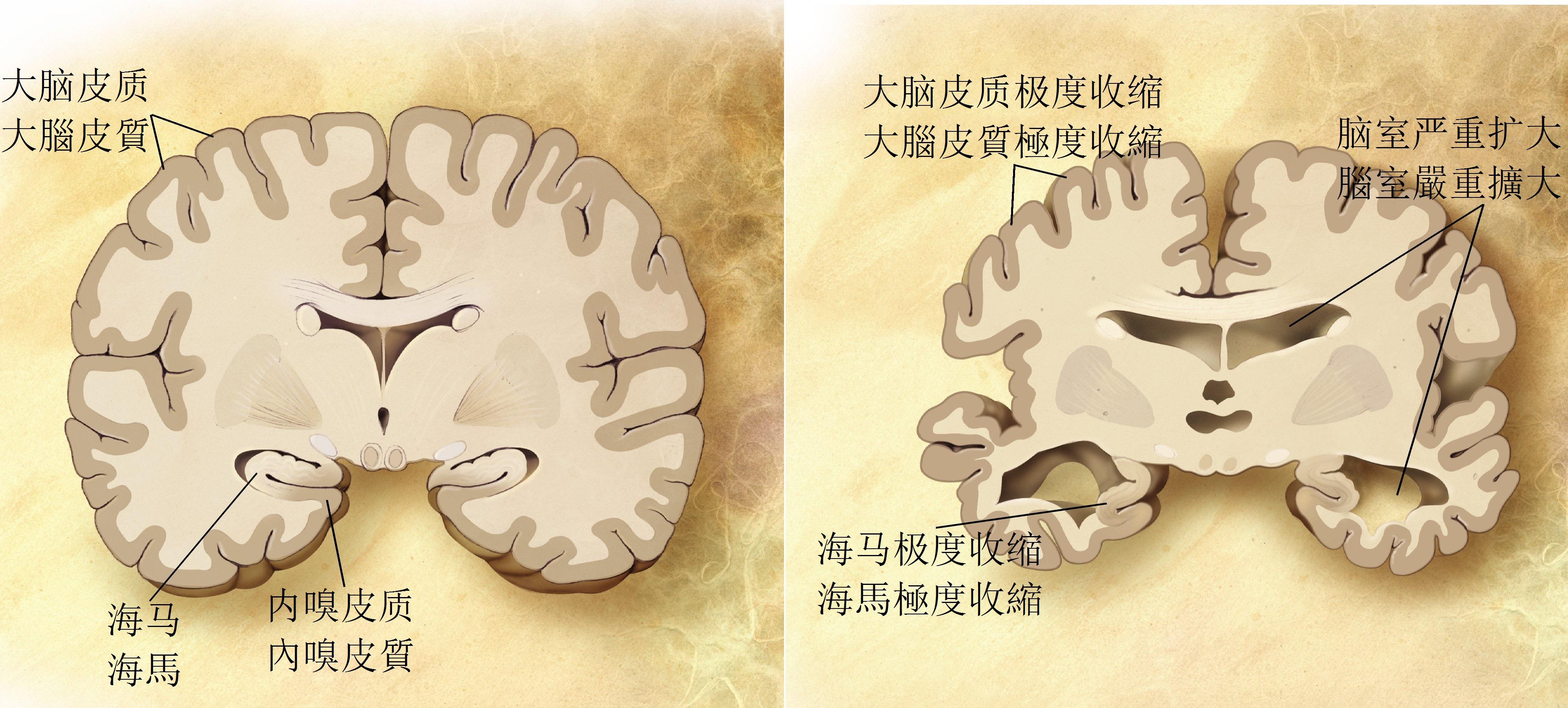 症 種類 認知