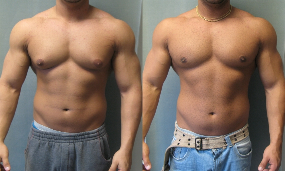 Gynecomastia Surgery and Natural Treatments