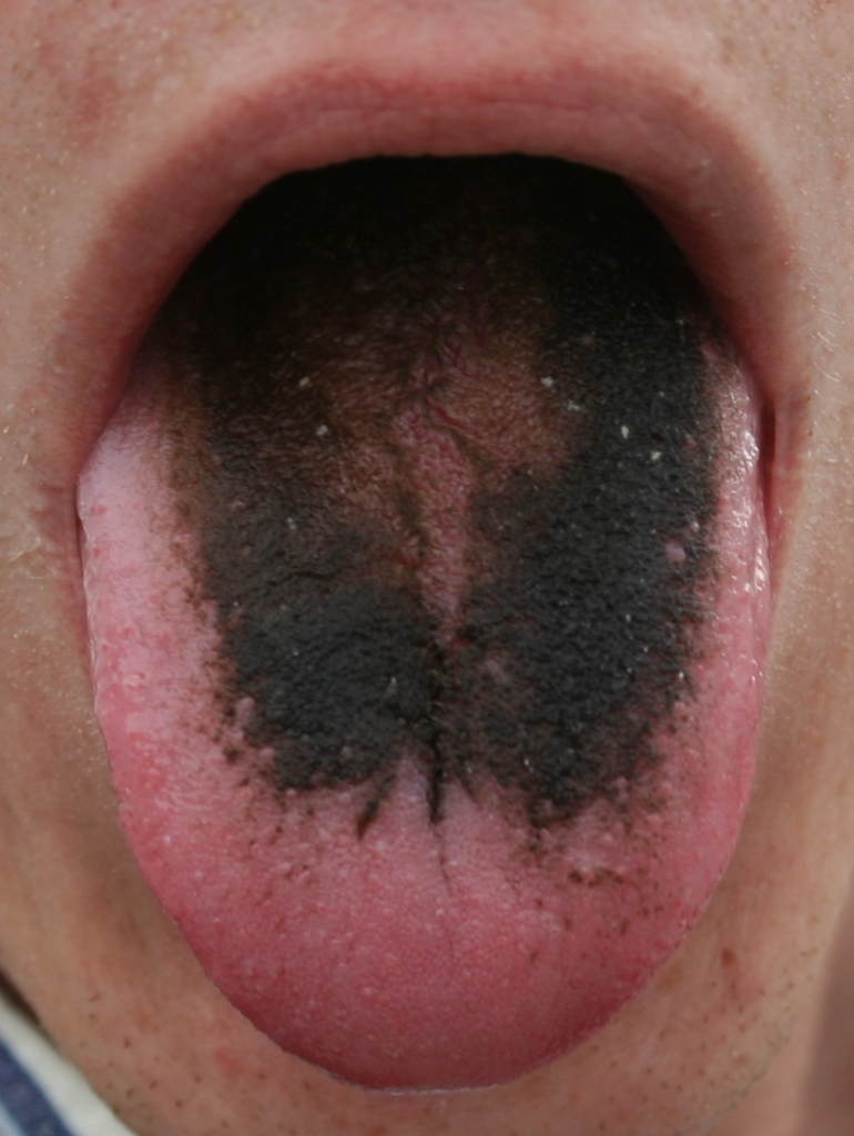 Hairy Tongue Wiki 112