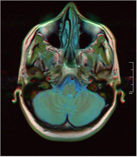 Brain MRI 0053 16.jpg