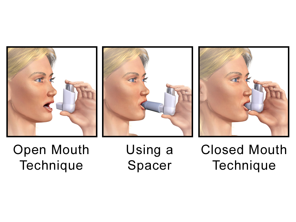 Metered dose inhaler techniques.