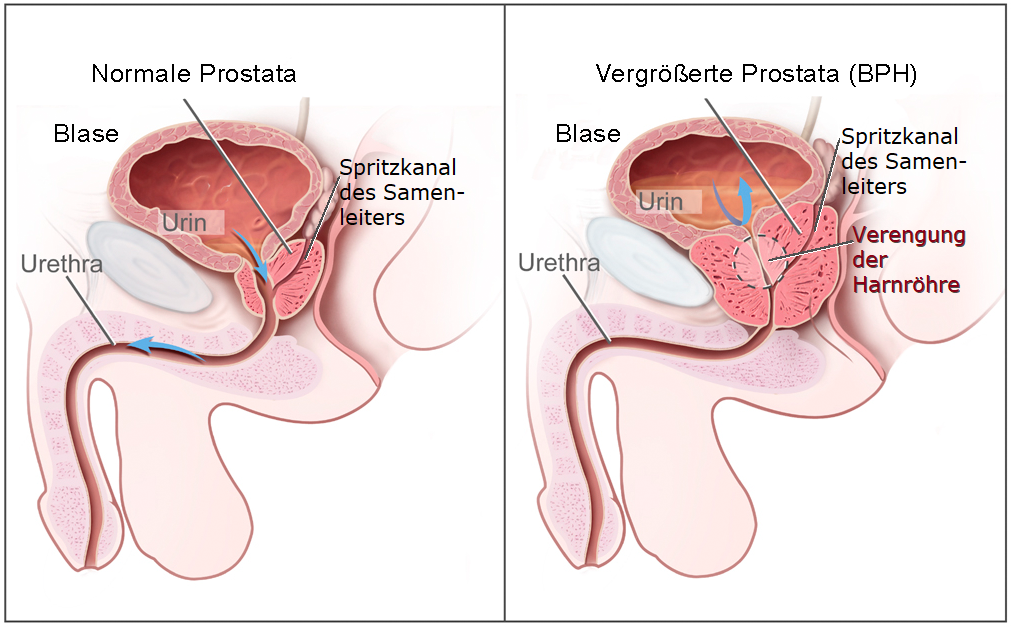 Benigne Prostatahyperplasie – Wikipedia