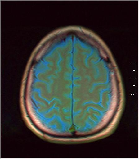 Brain MRI 293 03.png