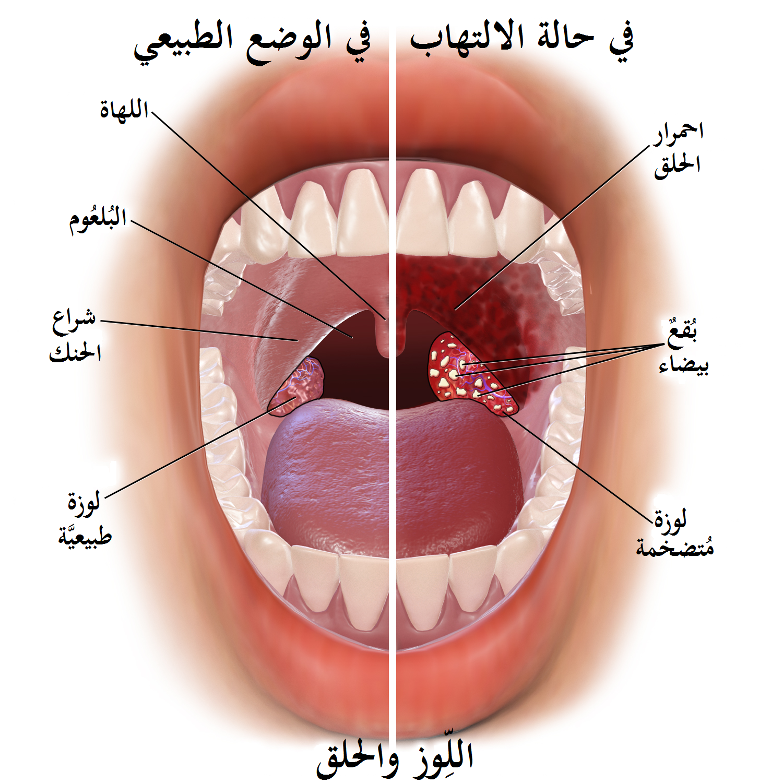 Blausen 0860 Tonsilsthroat Anatomy Arg