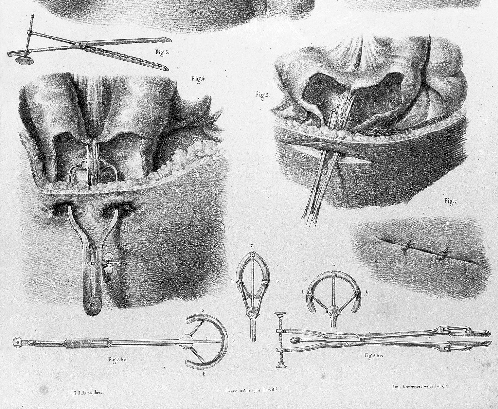 """Anatomie De L Homme file:j.b.m. bourgery, """"traite complet de l'anatomie de l'homme"""