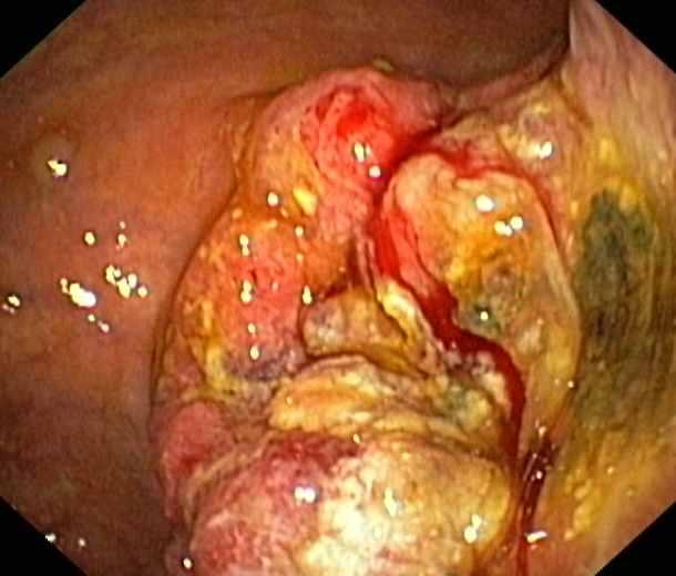 Magenkrebs.jpg