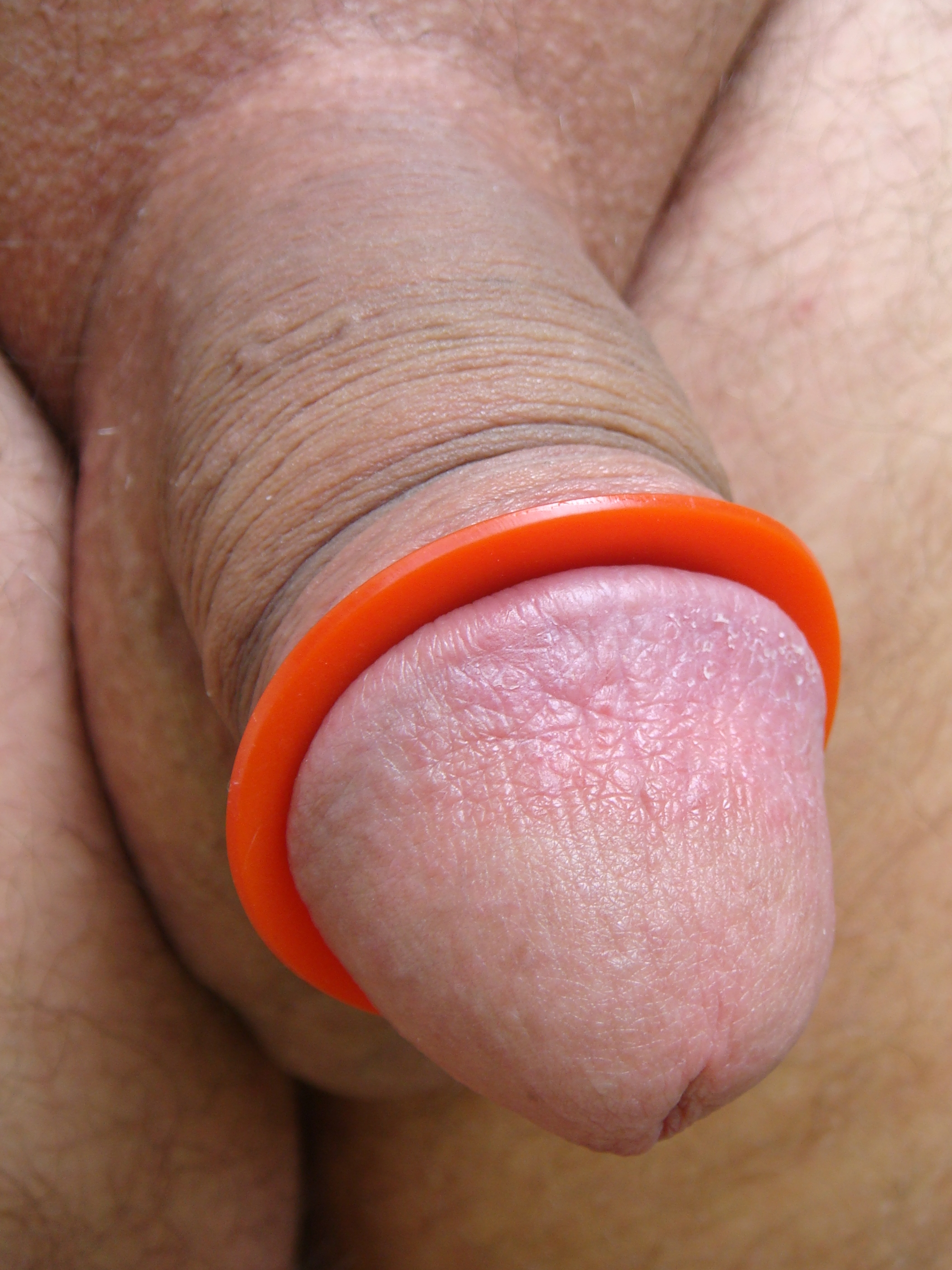 norge dating penis ring