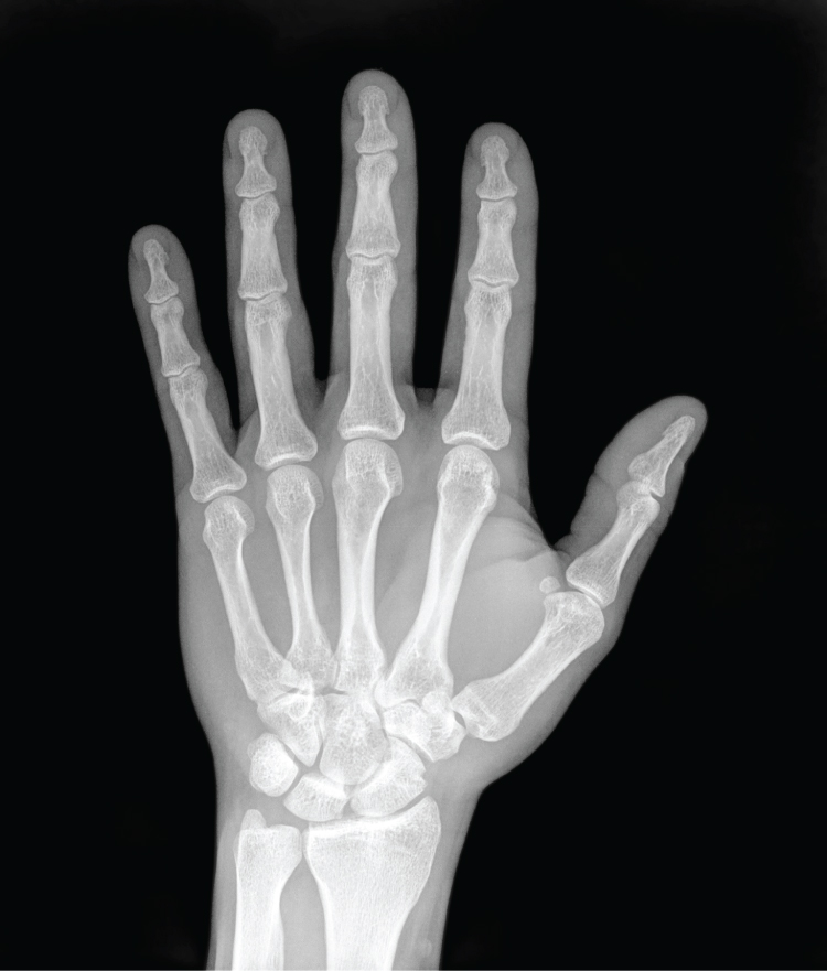 File:01 16 X-ray of Hand.jpg - Wikimedia Commons