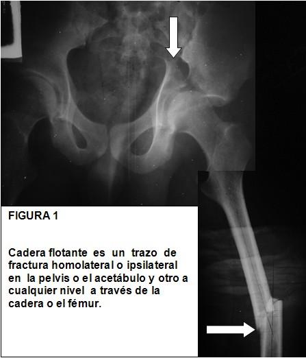 Caderaflotantefig1.jpg