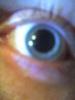 Eye bzp.jpg