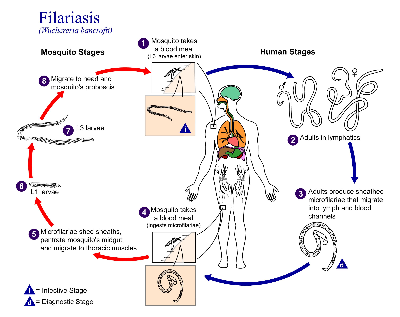 Filariasis - Wikipedia