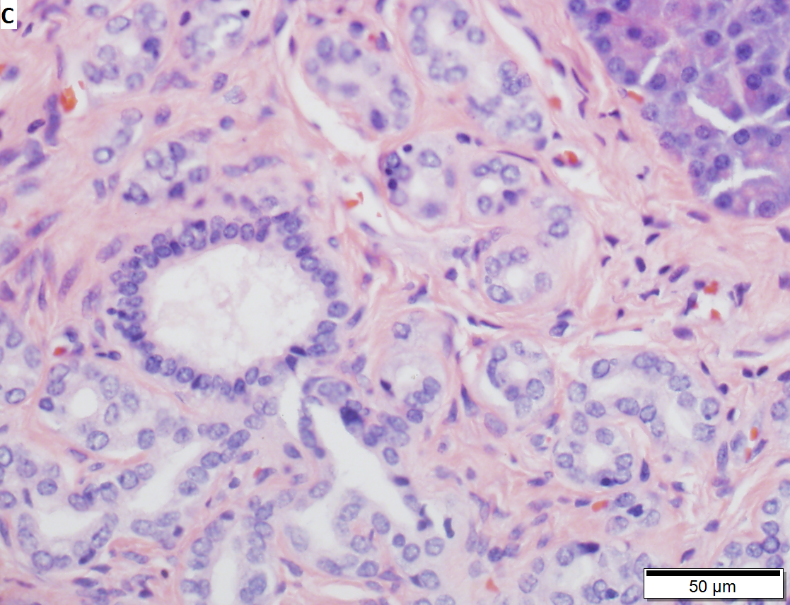 Pancreatic heterotopia in 35 year old women