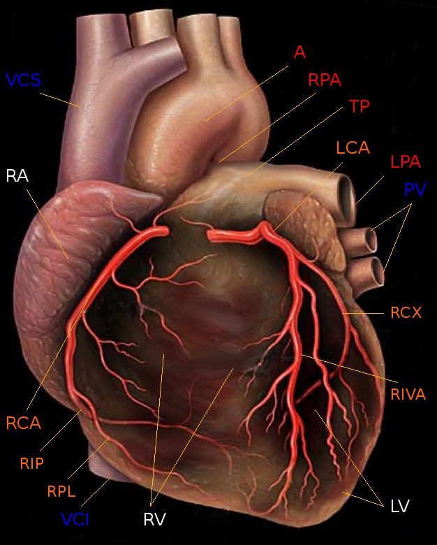 Koronare Herzkrankheit - Wikiwand