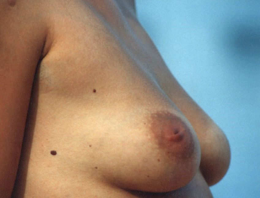 Duct Ectasia Of Breast Wikipedia