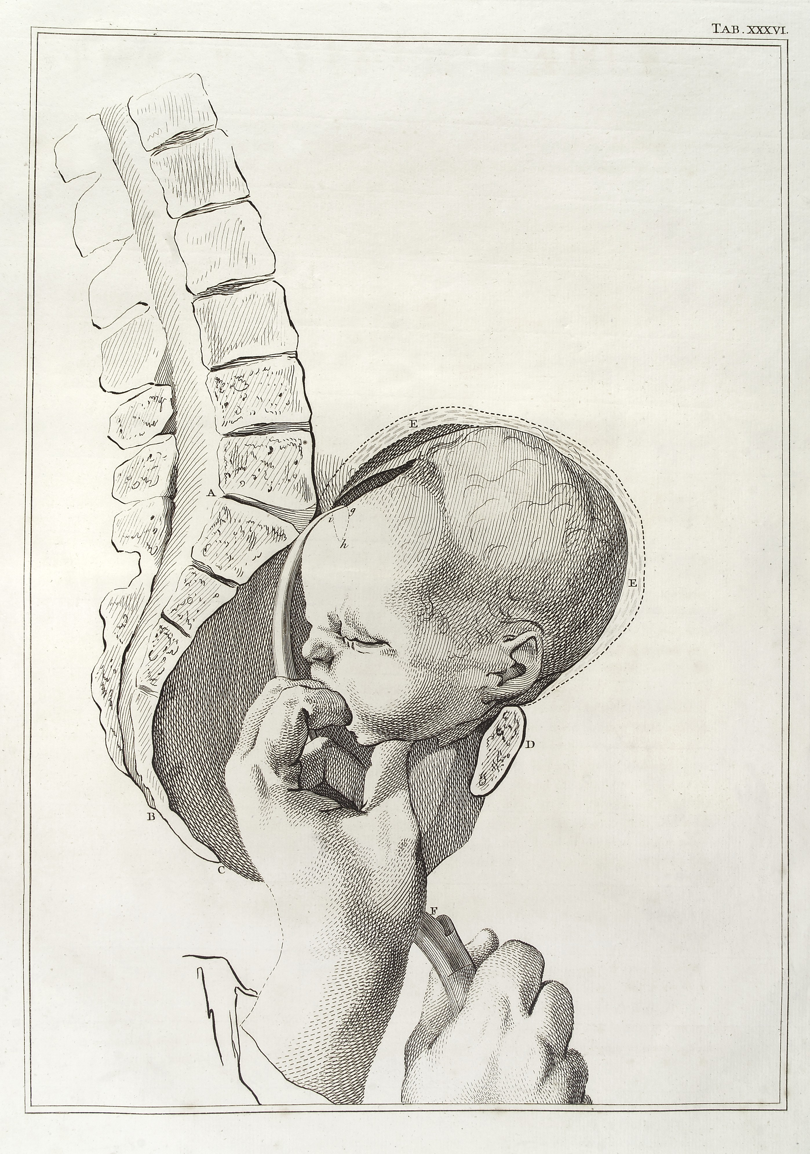 File:Lateral view of pelvis and diagram of assisted birth Wellcome ...