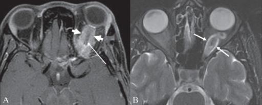 File Optic Nerve Sheath Meningioma Png Wikimedia Commons