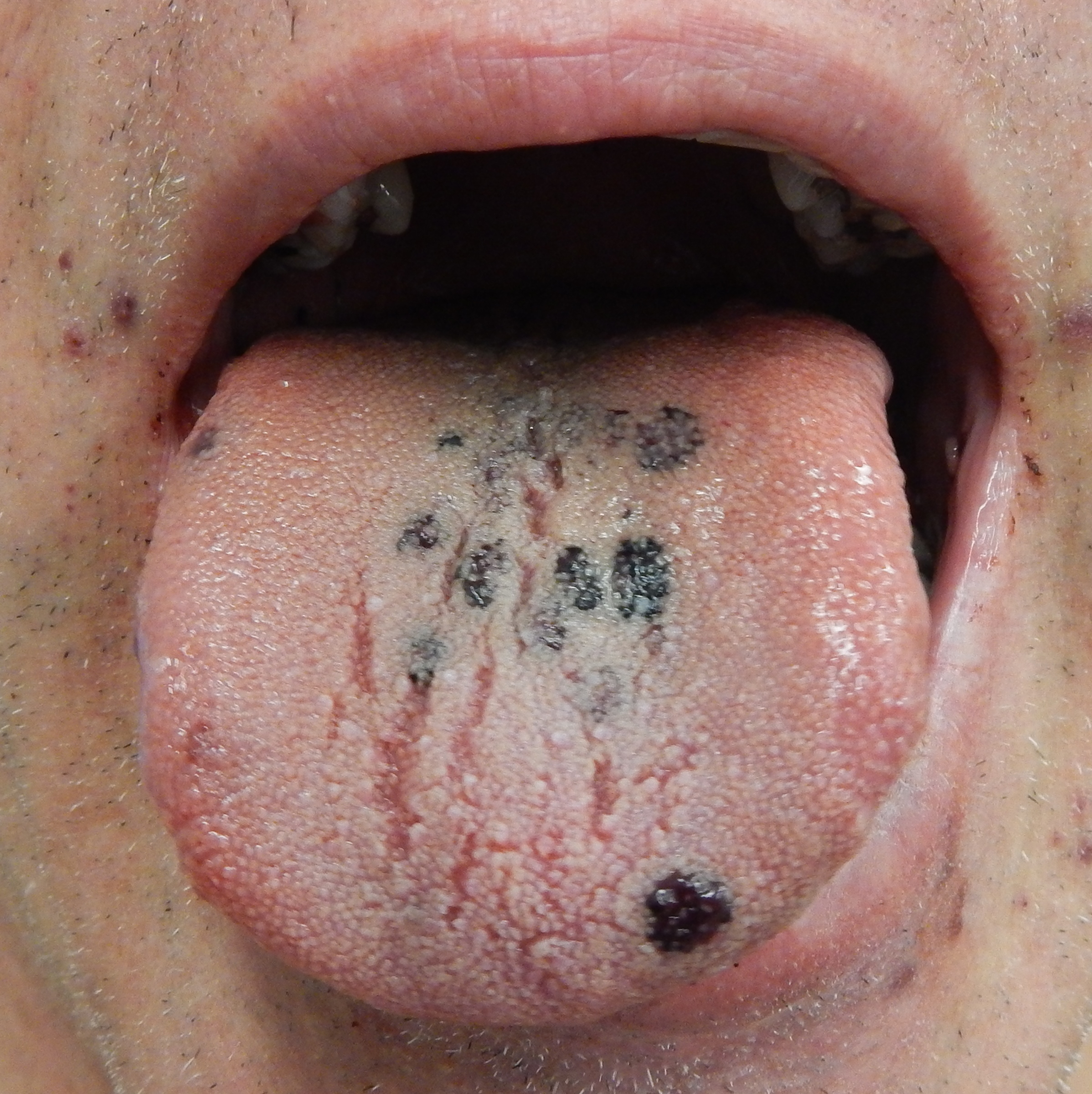 Skin Infections Pictures In Dogs