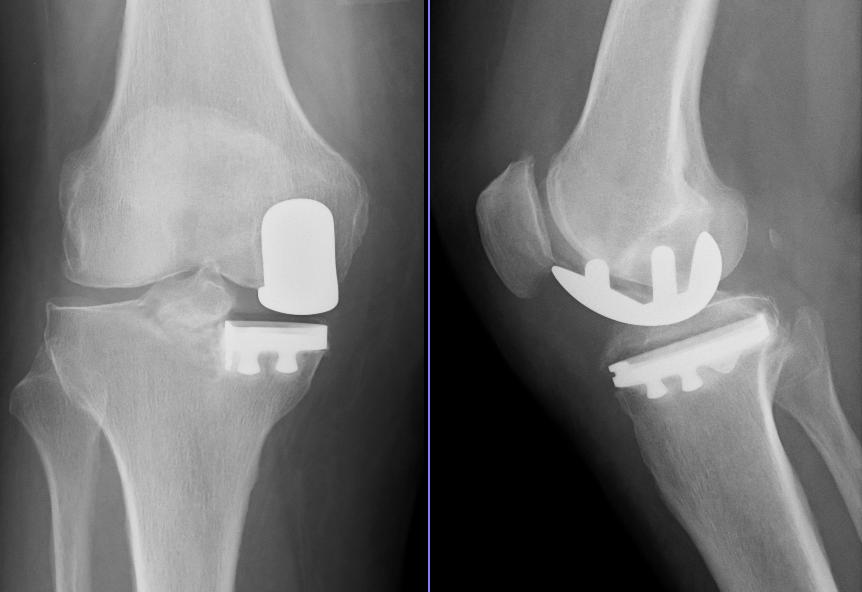 Unicompartmental knee arthroplasty - Wikipedia