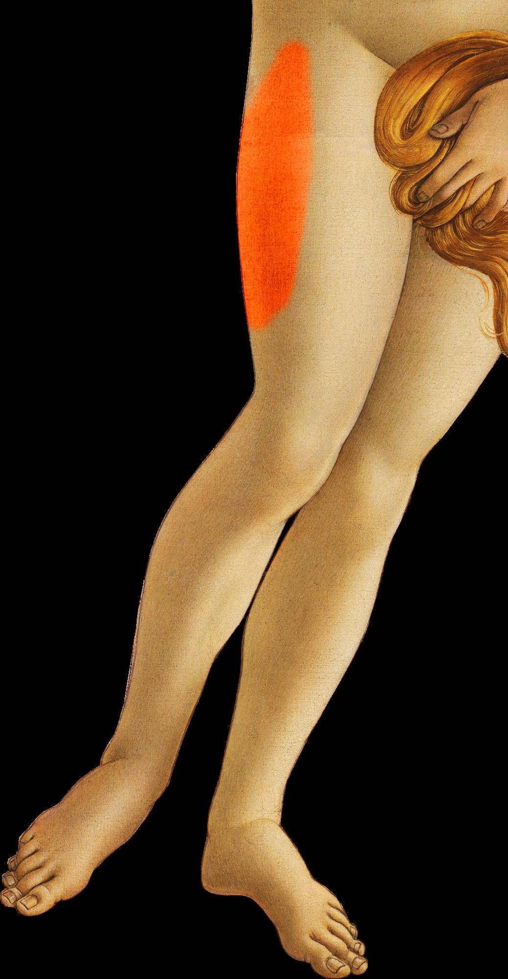 Meralgia paraesthetica – Wikipedia