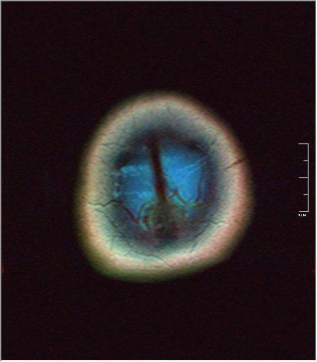 Brain MRI 0125 00.jpg