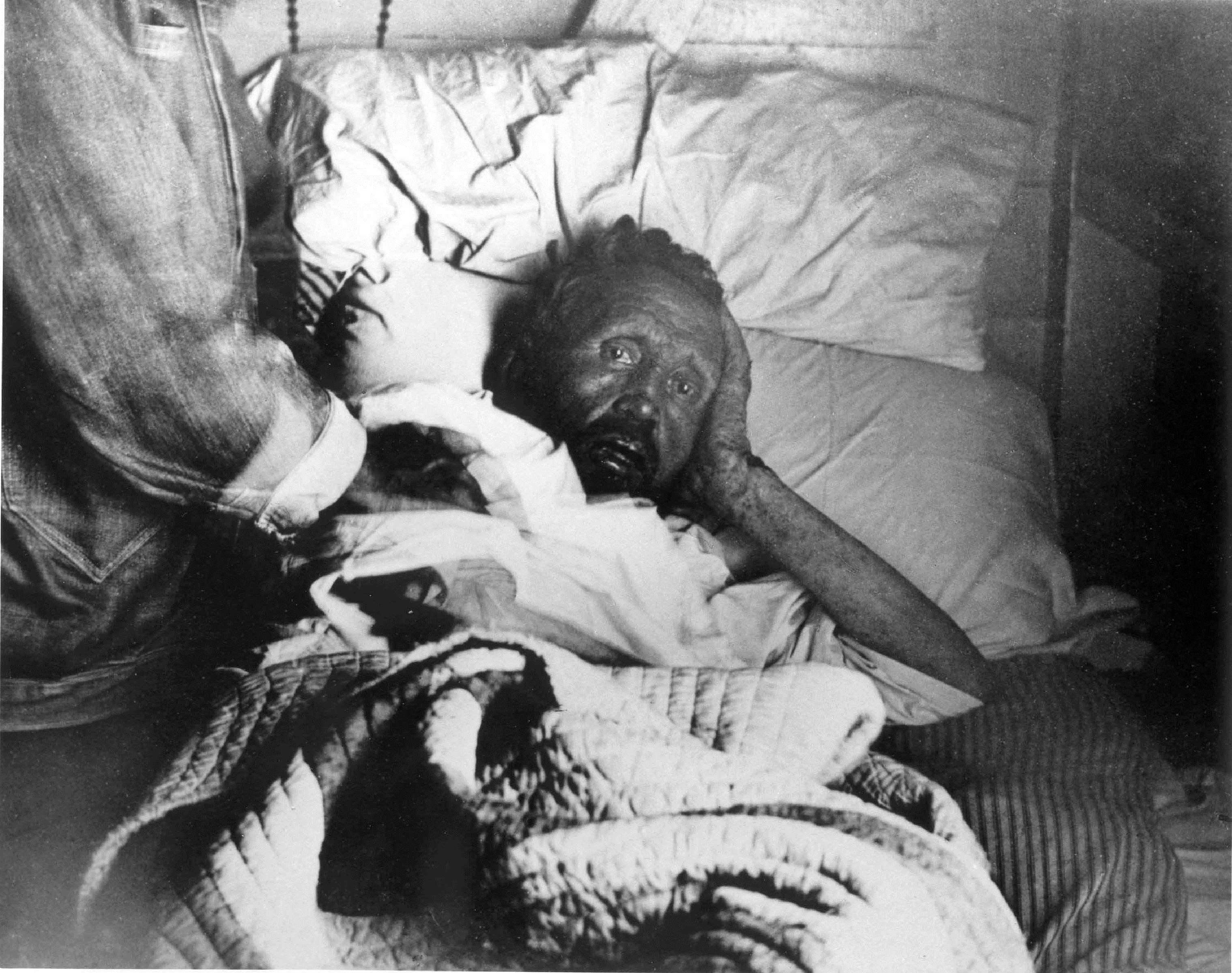 the history of leprosy Social stigma has been associated with leprosy for much of history, which continues to be a barrier to self-reporting and early treatment.