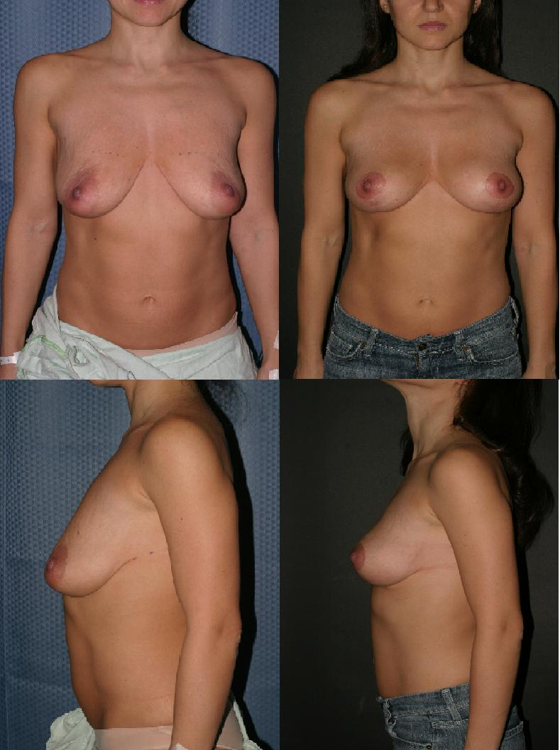 Mastopexy Before & After.JPG