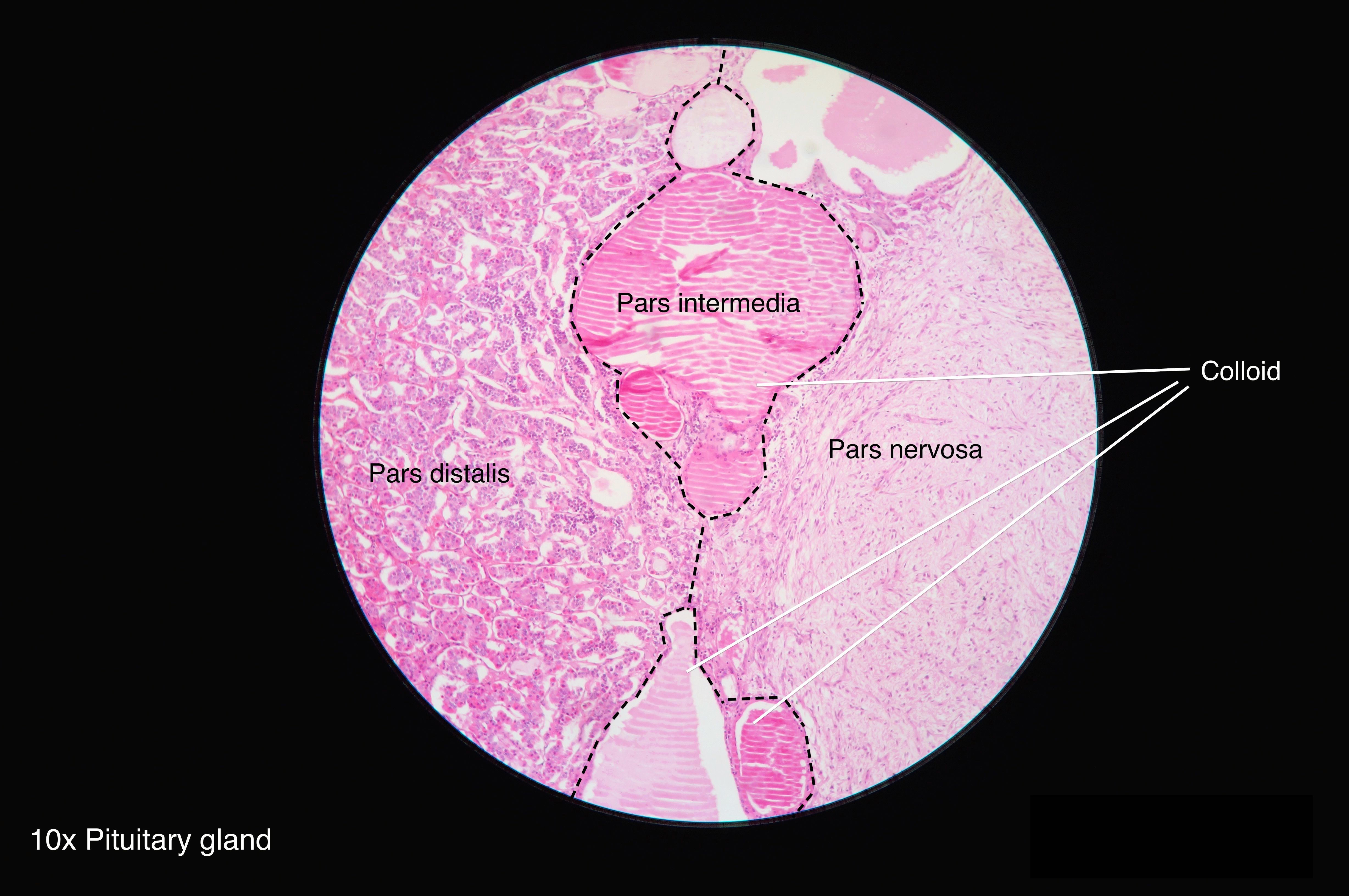 pituitary glands Pituitary gland definition, a small, somewhat cherry-shaped double structure attached by a stalk to the base of the brain and constituting the master endocrine gland.