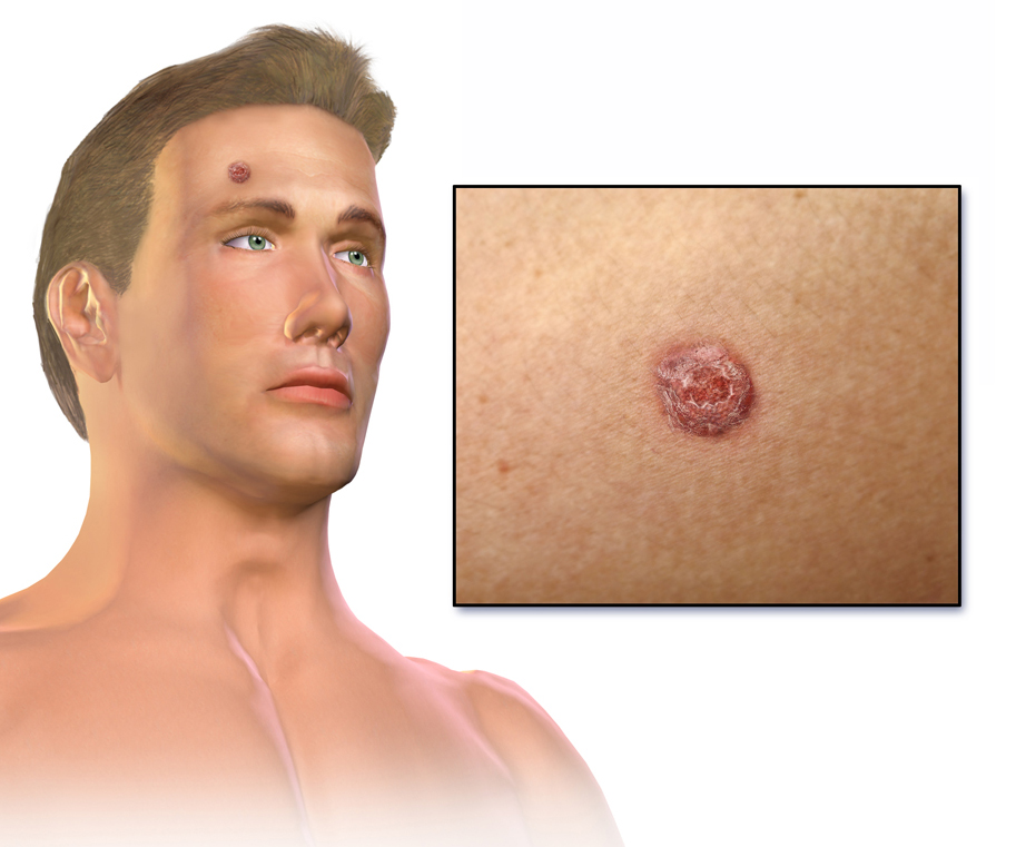Carcinoma de celulas escamosas