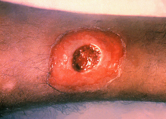 A diphtheria skin lesion on the leg. PHIL 1941 lores.jpg