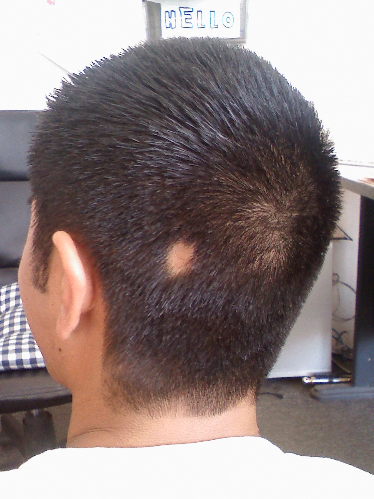 File:Alopecia areata bald spot.jpg - Wikimedia Commons