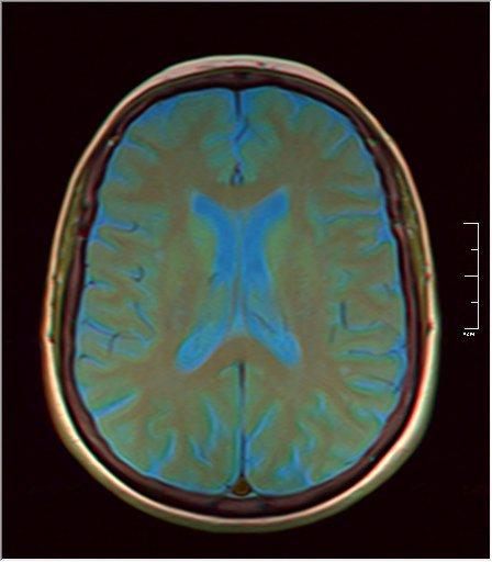 Brain MRI 0153 08.jpg