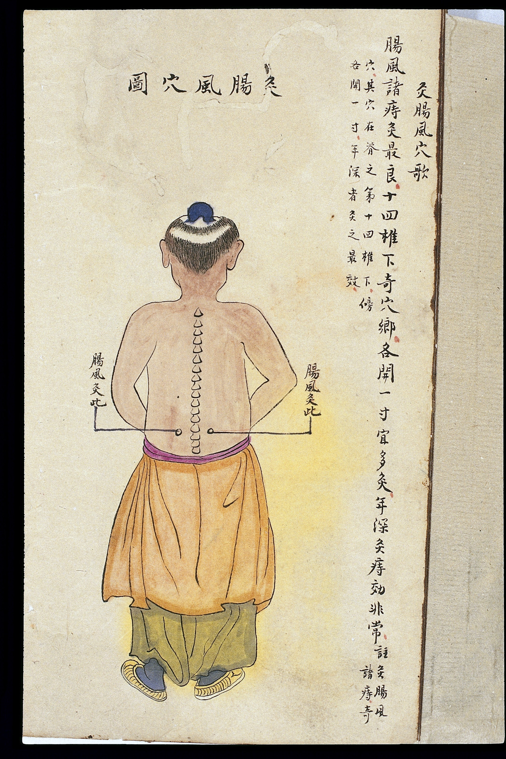 Trigger Points Chart: C19 Chinese MS moxibustion point chart; Intestinal wind point ,Chart