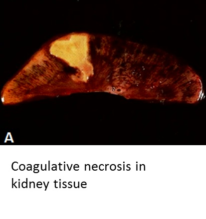 File Coagulative Necrosis In Kidney Tissue Jpg Wikimedia