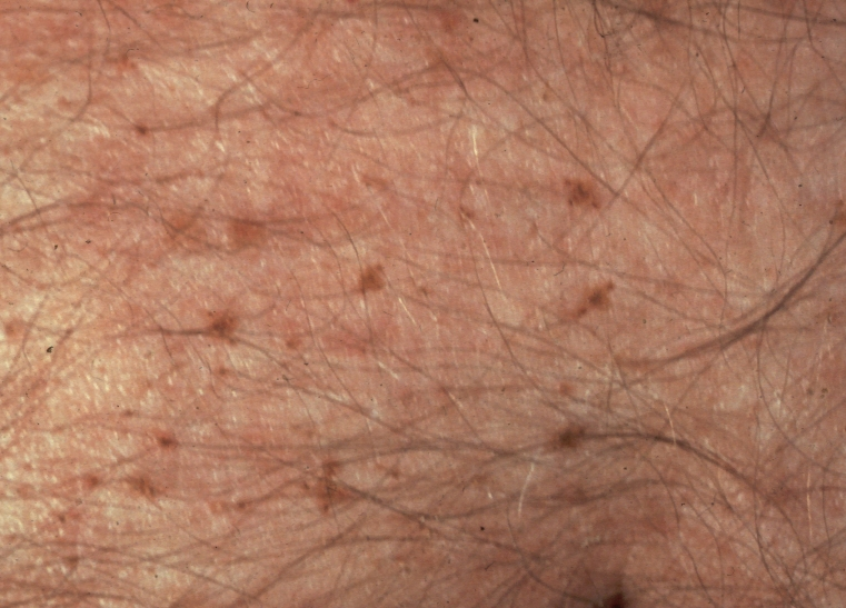Pediculosis pubis - Wikipedia