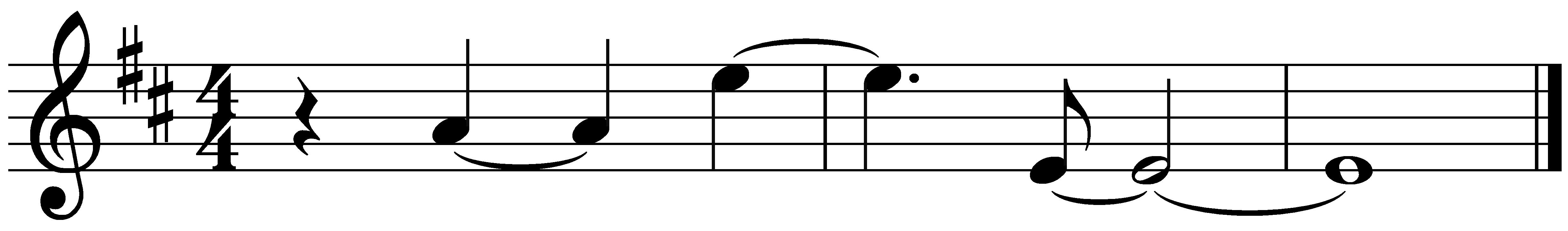 ligaduras de prolongación, esenciales para escribir ciertos ritmos.