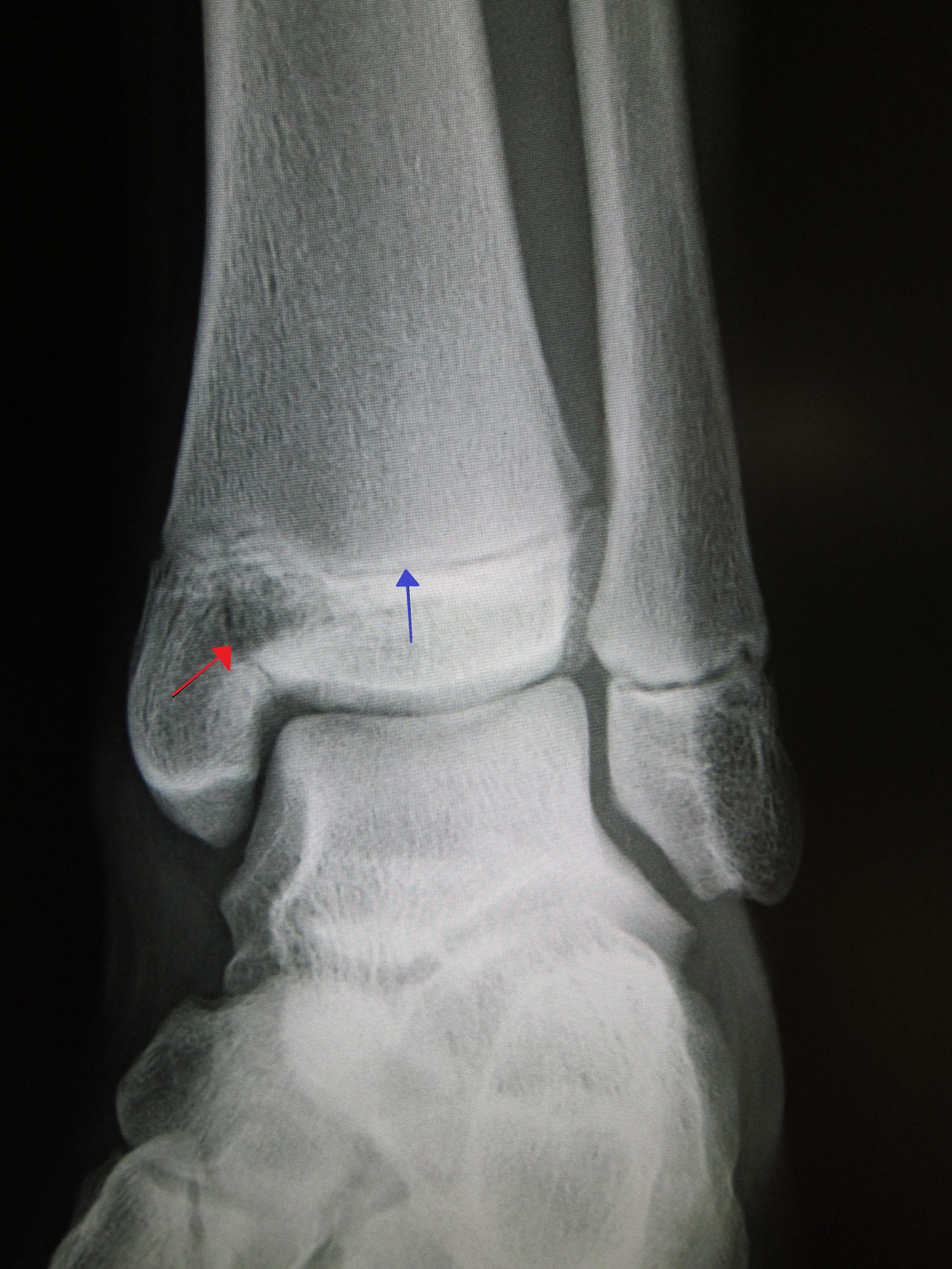 ankle fracture treatment san francisco