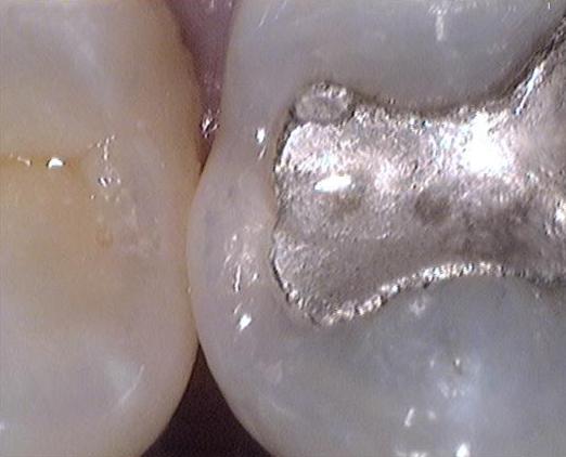 Zahnfüllung mit Amalgam