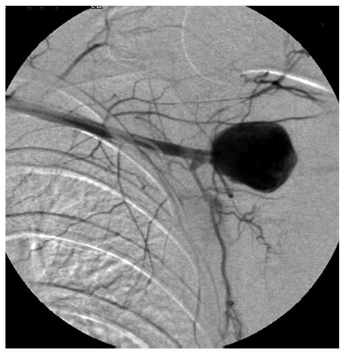 Archivo:Aneurisma micótico de la arteria axilar.jpg - Wikipedia, la ...