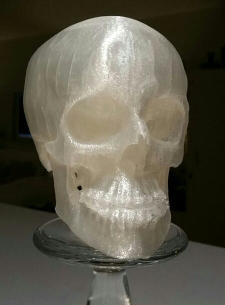 3D Printed Macrognathism.jpg