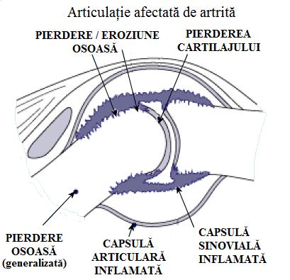 tratament articular piroxicam