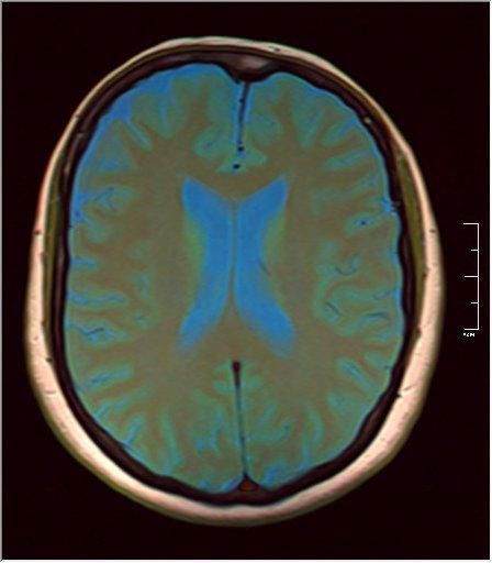 Brain MRI 0129 08.jpg