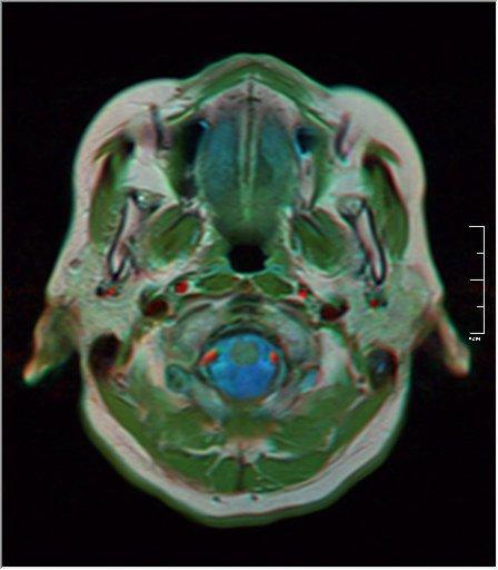 Brain MRI 0213 20.jpg