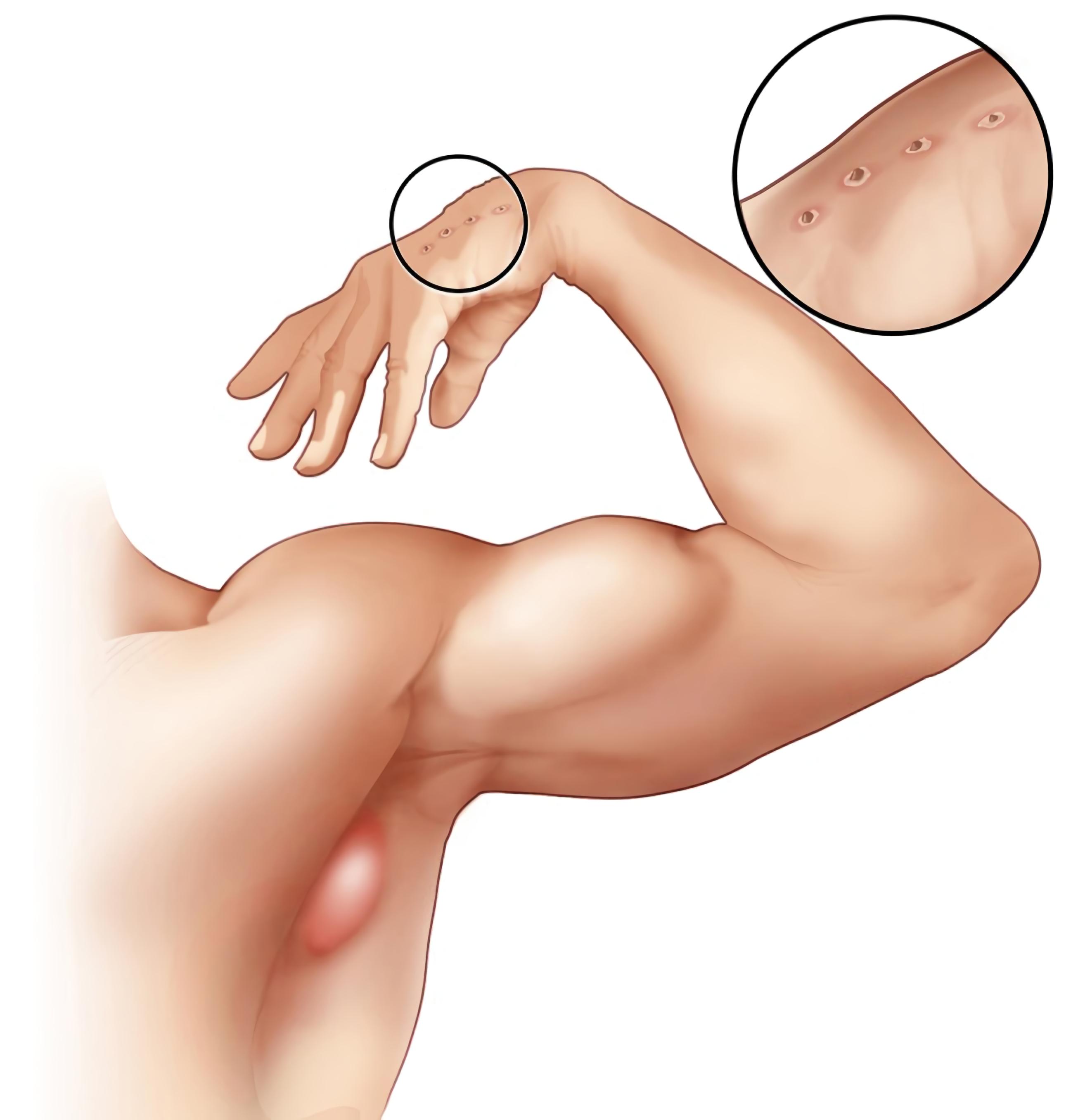 Cat-scratch disease - Wikipedia